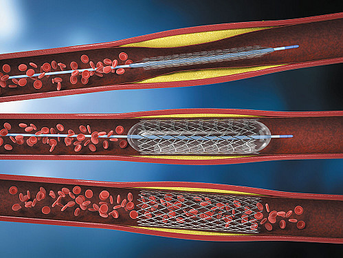 The story on heart stents featured image