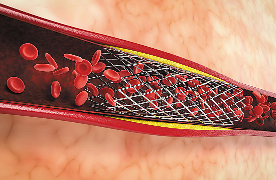 Blood thinners after a stent: How long? featured image