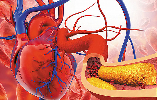Fight chronic inflammation and cholesterol to protect your heart featured image
