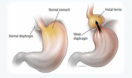 Gastroesophageal Reflux Disease (GERD) featured image