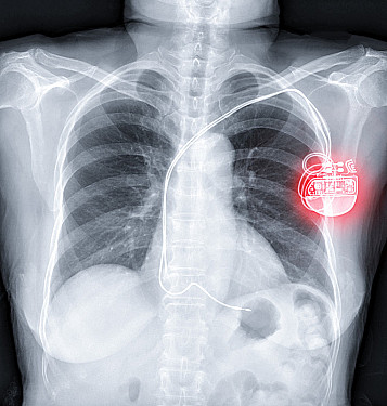 Pacemaker featured image