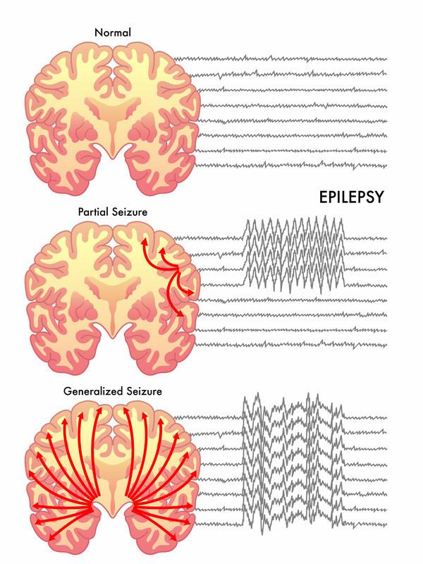 /media/content/images/medical-illustrations/epilepsy-dreamstime_s_54890402.jpg