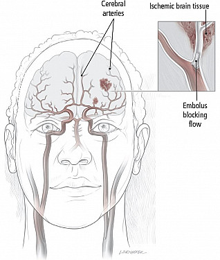 Stroke Overview featured image
