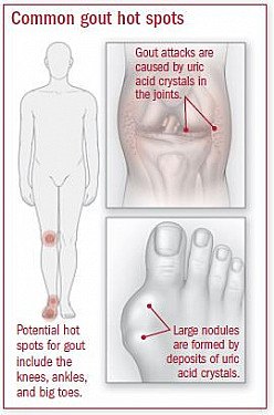 Gout featured image