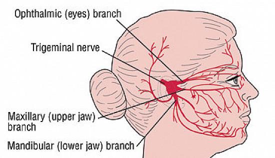 Trigeminal Neuralgia (Tic Douloureux) featured image