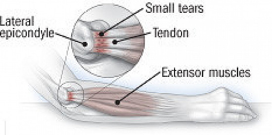 What to do about tennis elbow featured image