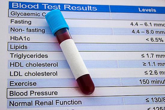 Making sense of cholesterol tests  featured image