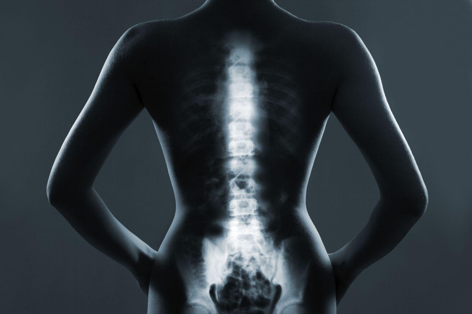 pain-free back