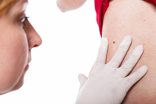 Melanoma — early detection and treatment are critical featured image
