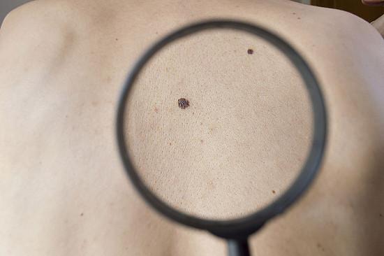 Treating melanoma featured image