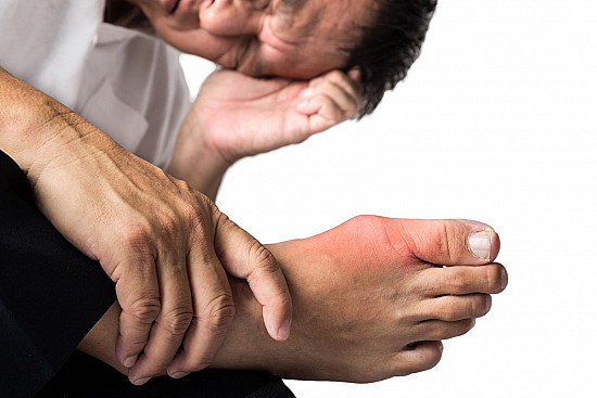 Gout: Inflammation and your joints featured image