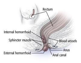 Anatomy of hemorrhoids