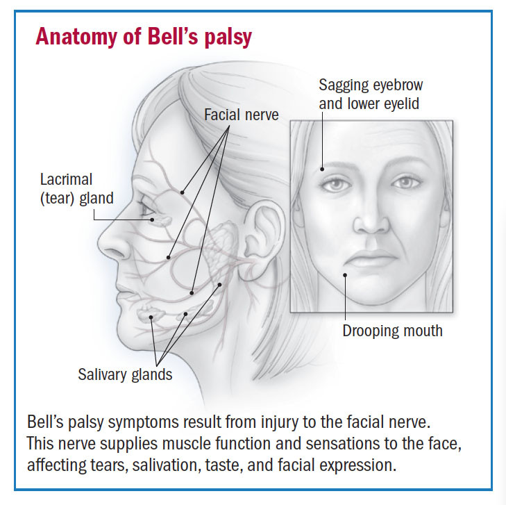 Bell's palsy, also called facial palsy