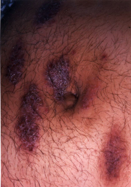 Photograph of atopic dermatitis and eczema