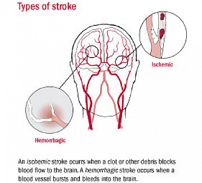 """Decline in stroke deaths reinforces importance of preventing """"brain attack"""" featured image"""