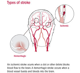 """Decline in stroke deaths reinforces importance of preventing """"brain attack"""""""