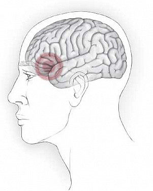 Living with chronic headache: A personal migraine story featured image