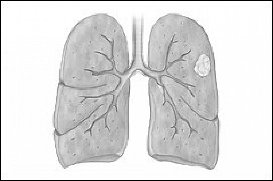 Should smokers be tested for lung cancer? featured image