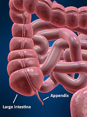 Antibiotics instead of surgery safe for some with appendicitis featured image