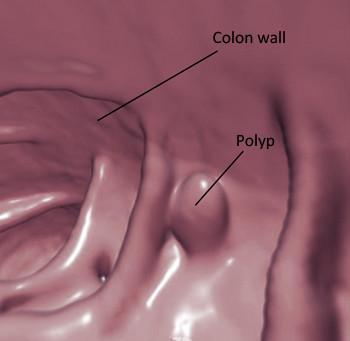 virtual_colon_polyp-350.jpg