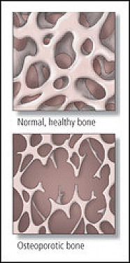 Thigh fractures linked to osteoporosis drugs; long-term use questioned featured image