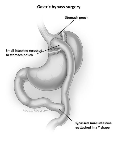 Gastric-bypass.jpg