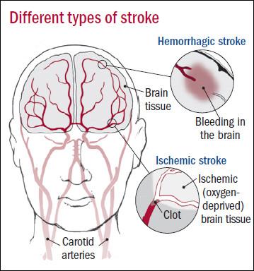 Types-of-stroke1.jpg