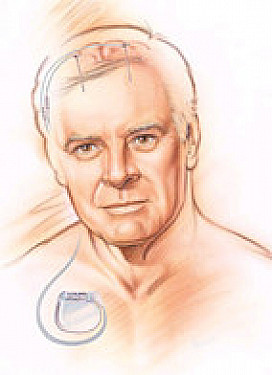 Deep-brain stimulation can be started earlier to ease Parkinson's symptoms featured image