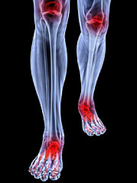 Exercise is good, not bad, for arthritis featured image