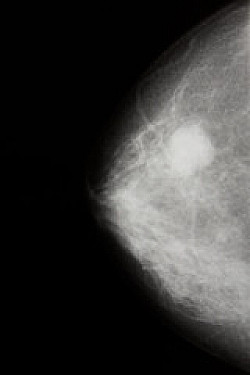New presurgery drug approved for early HER-2 breast cancer featured image
