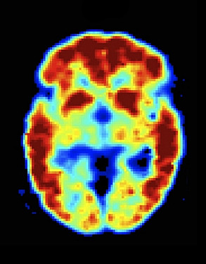 PET scans peer into the heart of dementia featured image