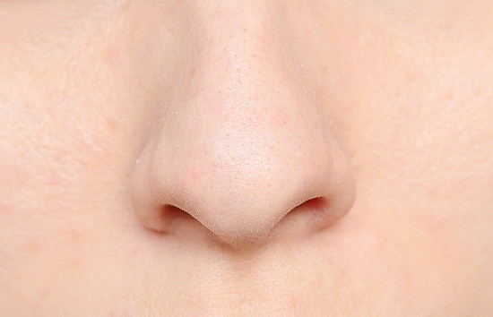 Stopping nosebleeds: a pinch will usually do the trick featured image