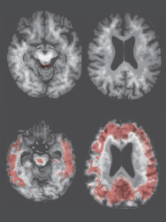 Brain-w-Alzheimers