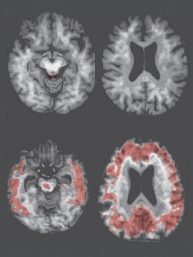 """Expert panel says """"no"""" to widespread testing for Alzheimer's, dementia featured image"""