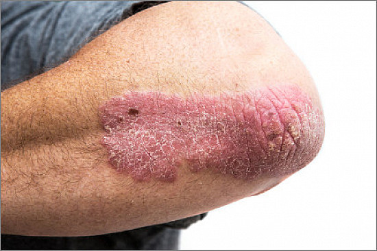 """The """"heartbreak of psoriasis"""" may affect your joints, heart, and mind featured image"""