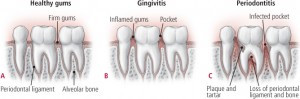 Gum disease develops when inflammation spreads to the tissues that support the teeth. Healthy gums (A) are firm and tightly hug the teeth. Without proper cleaning, plaque can build up where the gum tissue meets the tooth. As plaque accumulates, the gum tissue pulls away from the tooth, creating a tiny pocket. The gums become inflamed, a condition called gingivitis (B). Gingivitis can get worse, causing a more severe gum disease known as periodontitis (C). Here, the pocket widens as the gum pulls back from the root of the tooth. The disease also destroys the periodontal ligament and bone, reaching the tooth socket. Depending on the level of severity, the ligament and bone damage can cause the tooth to become loose, and it may fall out.
