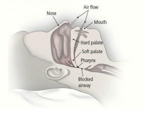 Illustration of obstructive sleep apnea