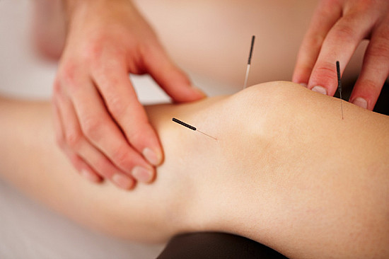 Acupuncture for knee arthritis fails one test but may still be worth a try featured image