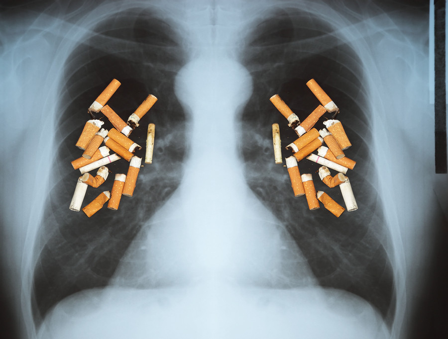 Lung-Cancer-xray