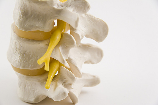 New recommendations aim to improve safety of pain-relieving spinal steroid injections featured image