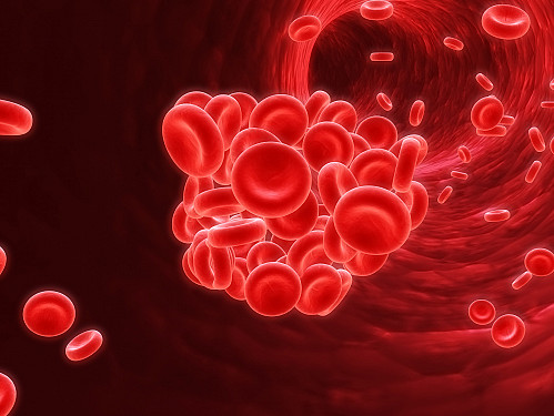 Hidden cancer rarely causes out-of-the-blue clots in the bloodstream featured image