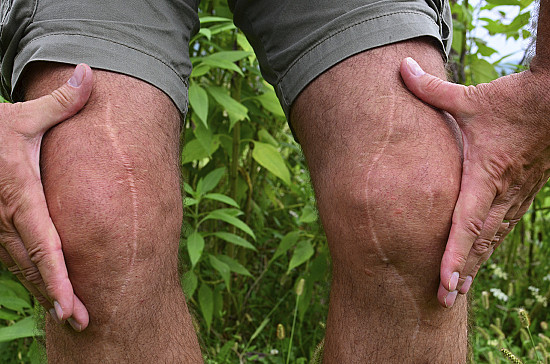 Is it hard to decide about total knee replacement? Totally! featured image
