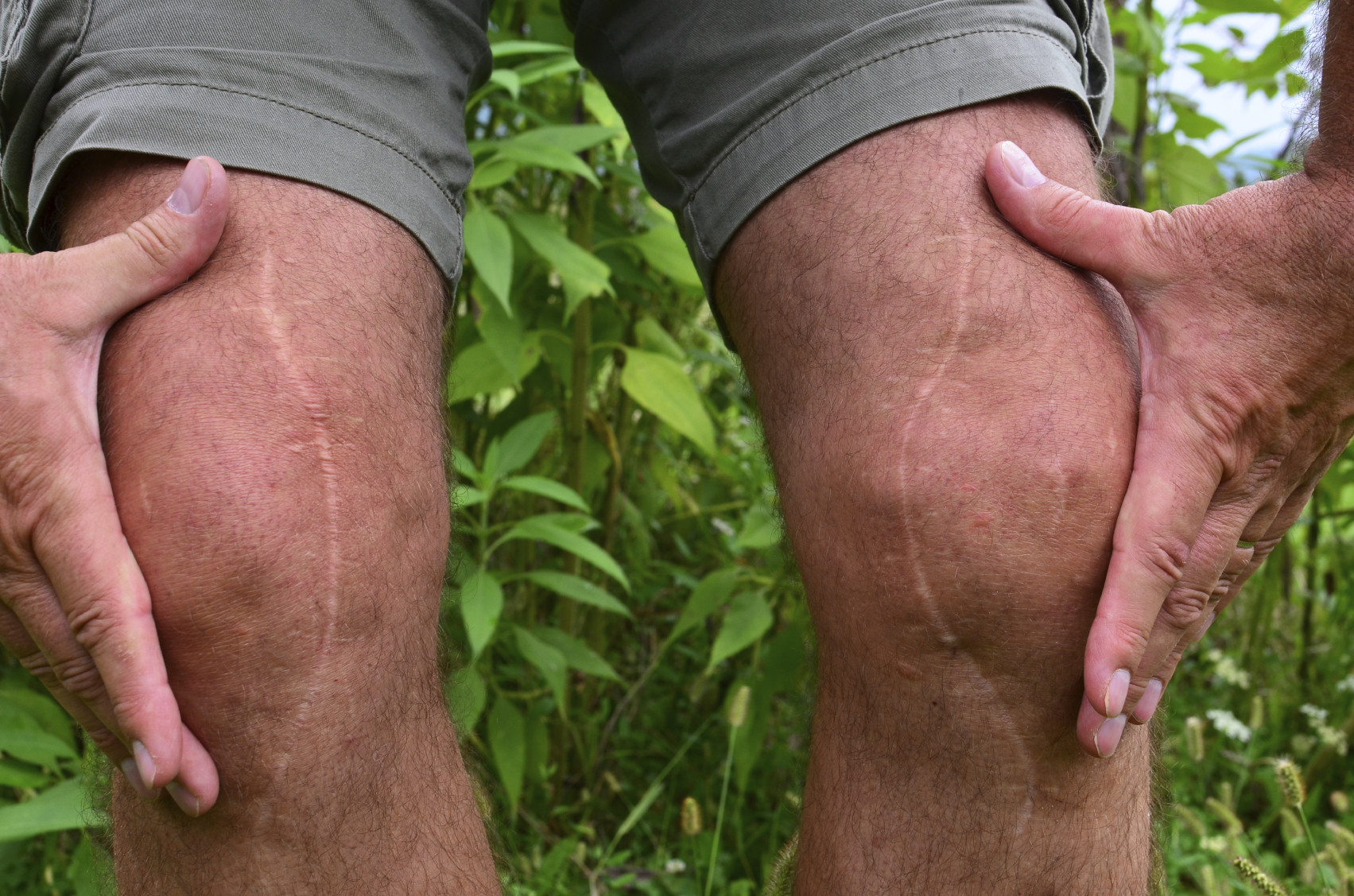 knee-replacement-scar-joint-painiStock_000050830058_Medium