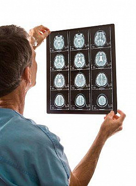 Imaging tests: Using them wisely featured image