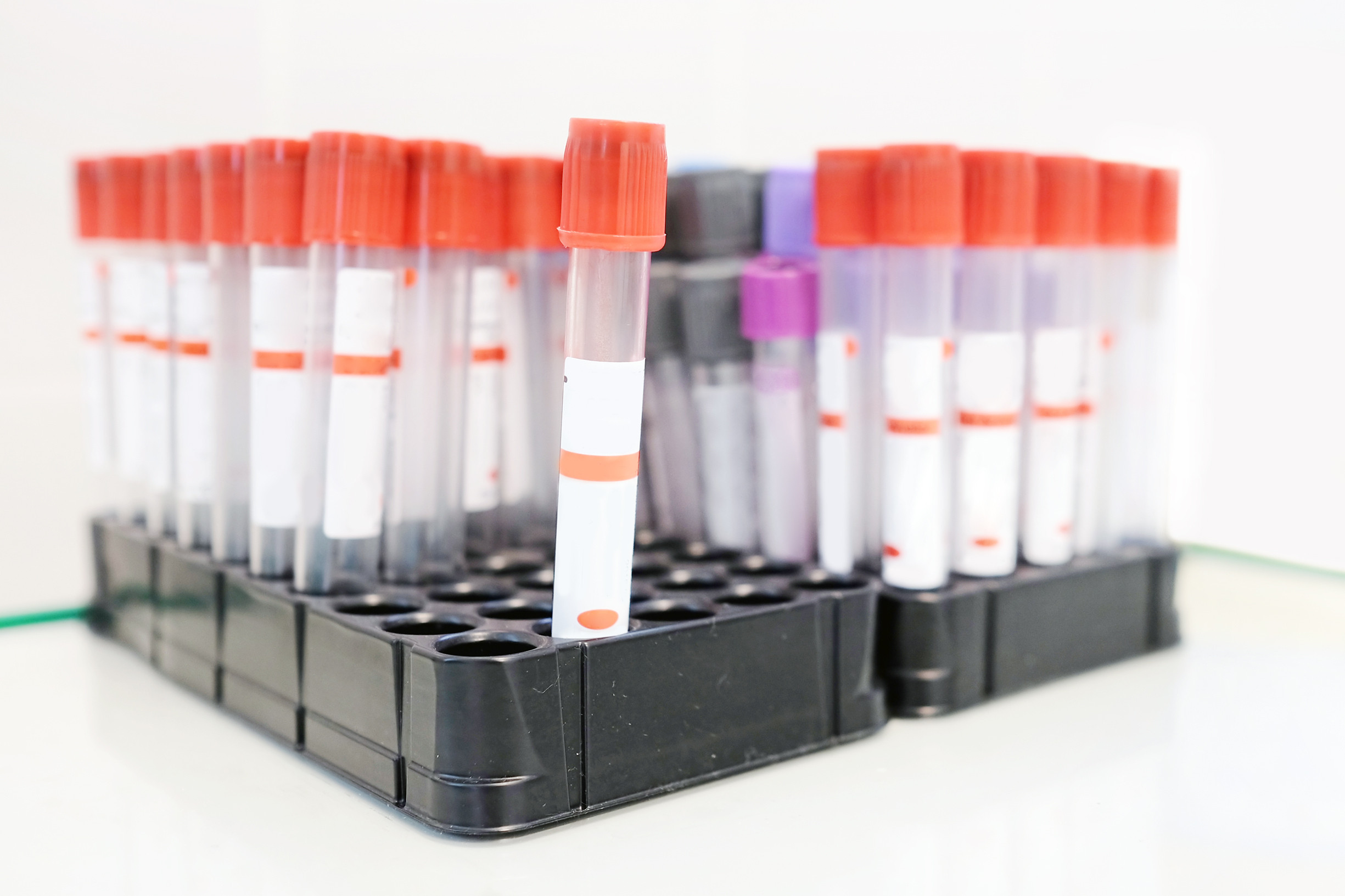 prostate-screening-image