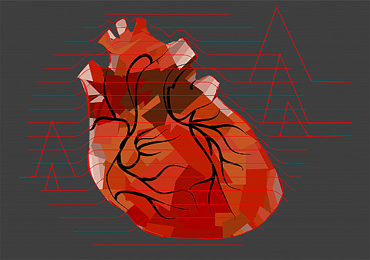 Silent heart attacks: Much more common than we thought in both men and women featured image