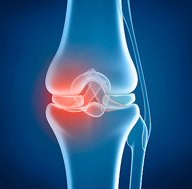 Knee replacement: Life changing or a disappointment? featured image