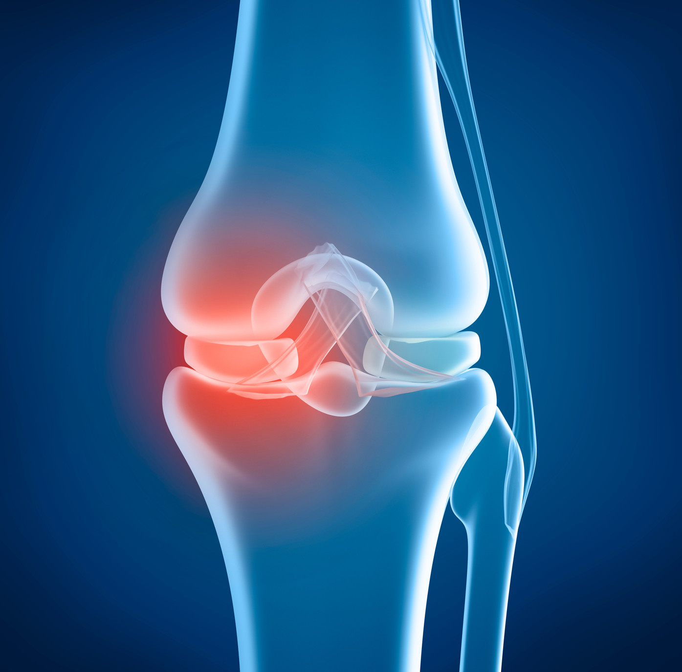 satisfaction-with-knee-replacement-blog