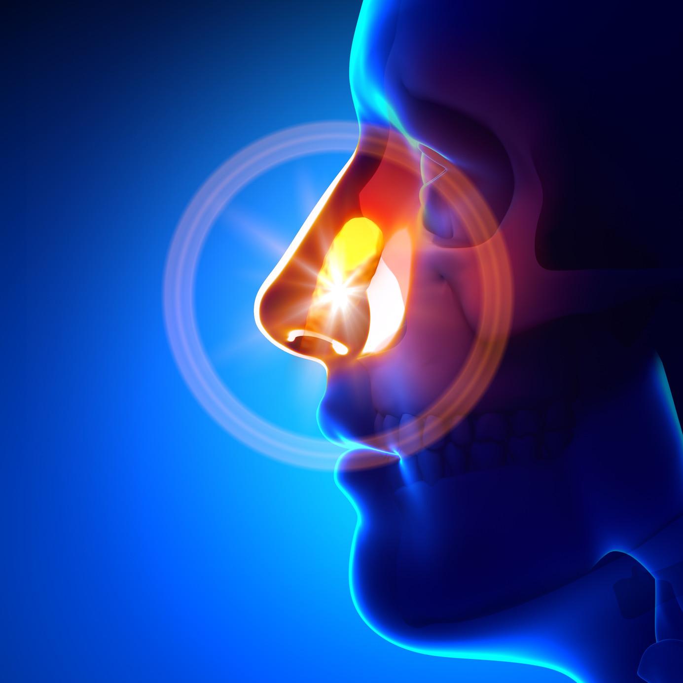 Sinusitis-blog