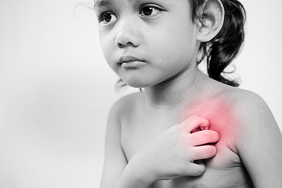 3 things you can do when your child's eczema gets bad featured image